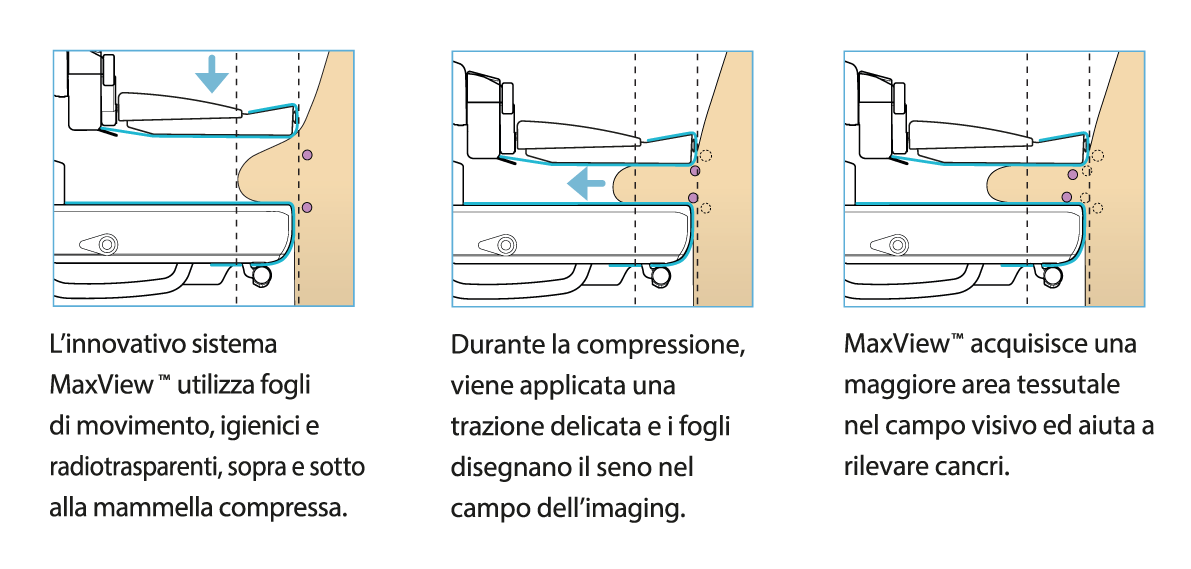Sistema mammografico Planmed Clarity™ 2D - 3D - Assing