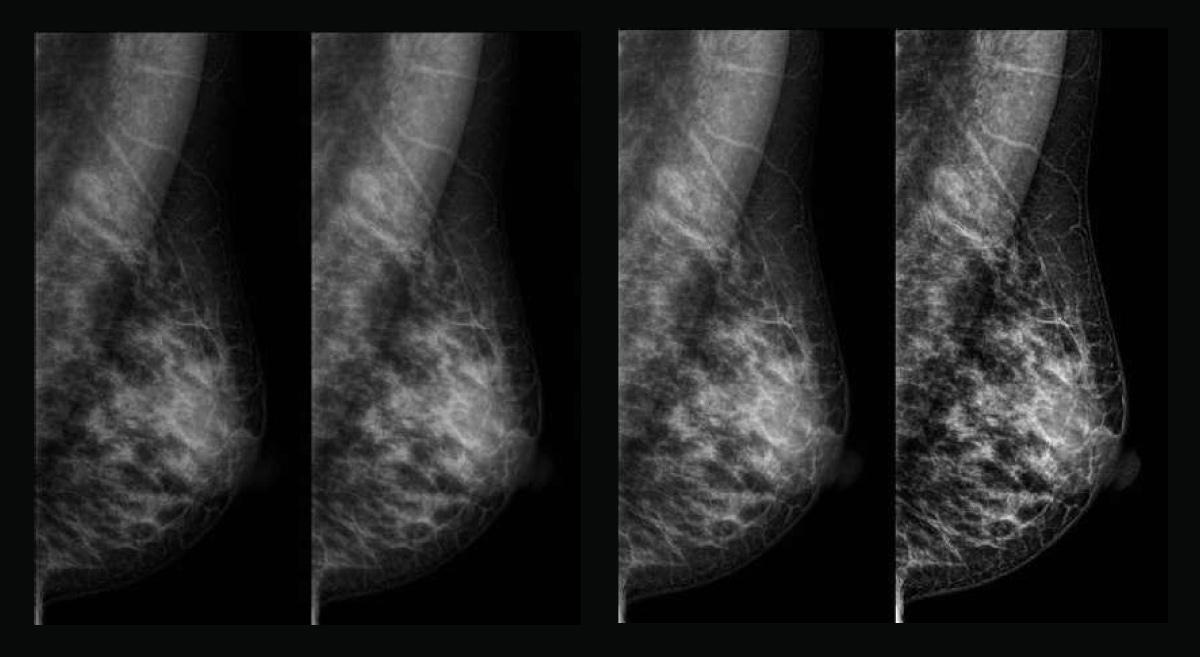 Sistema mammografico Planmed Clarity™ S - Assing