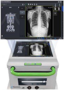 Sistema radiologico portatile Speedy Plus DR - Assing